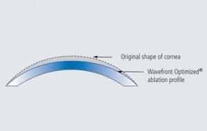 Profil d'ablation myopique