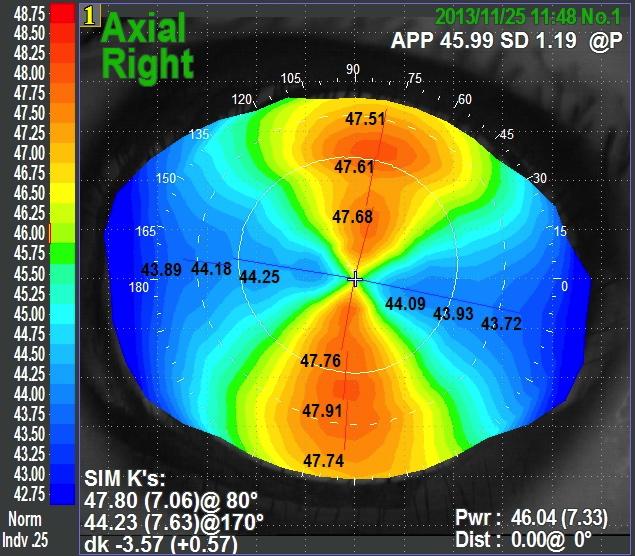 Chirurgie de la cataracte et correction de l'astigmatisme