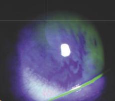Environnement et sécheresse oculaire