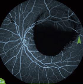 Traitement par laser YAG d'un hématome rétro-hyaloïdien compliquant un macro-anévrysme artériel rétinien